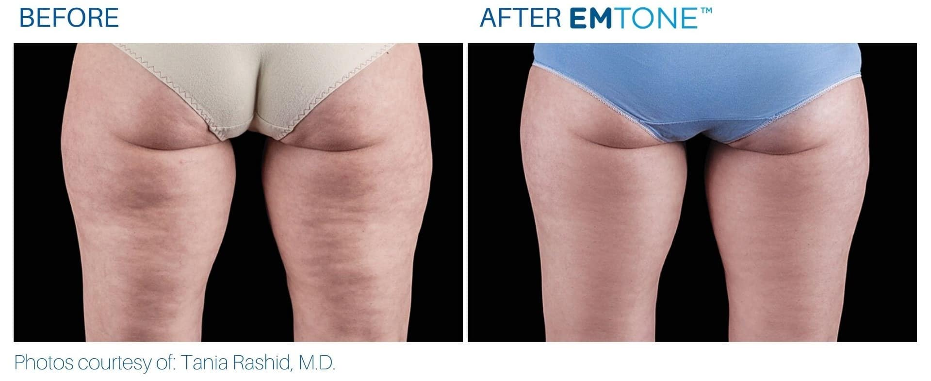 EMTONE BEFORE AND AFTER