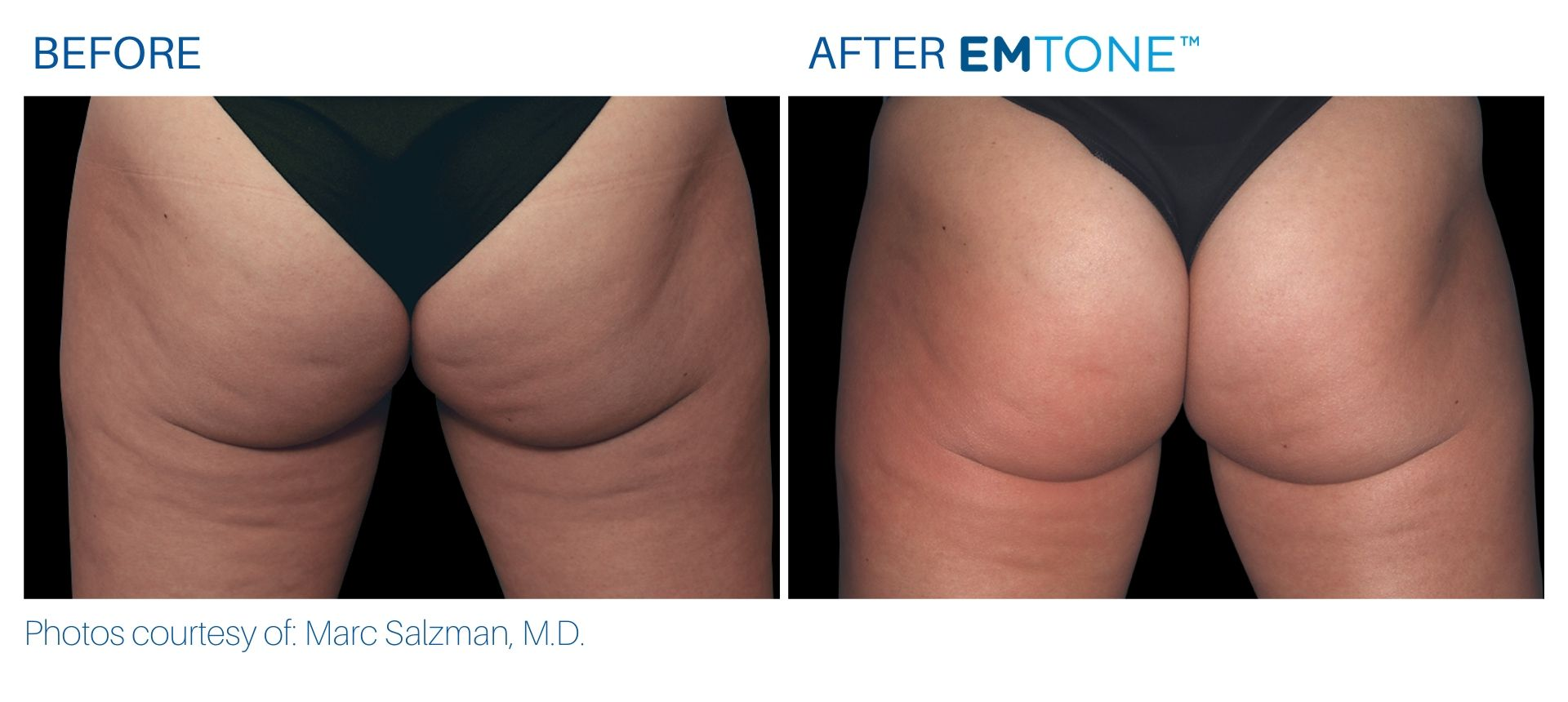 Emtone buttocks before and after result BodyMorphMD