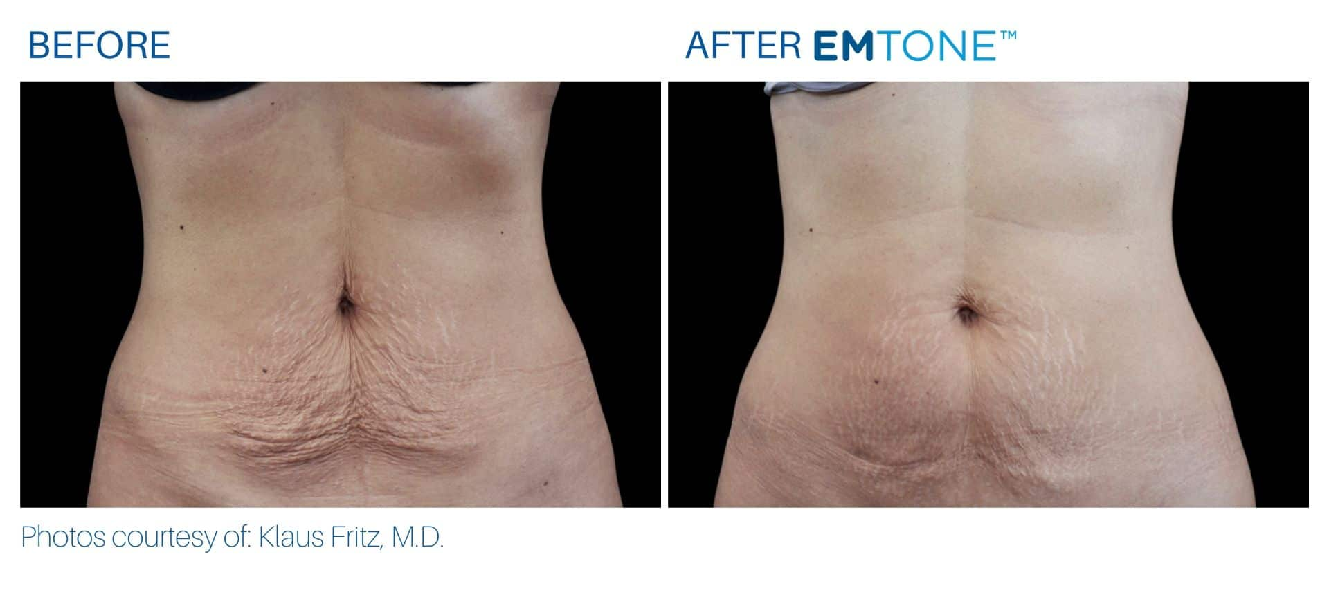 Emtone abdomen before and after result Yonkers, NY