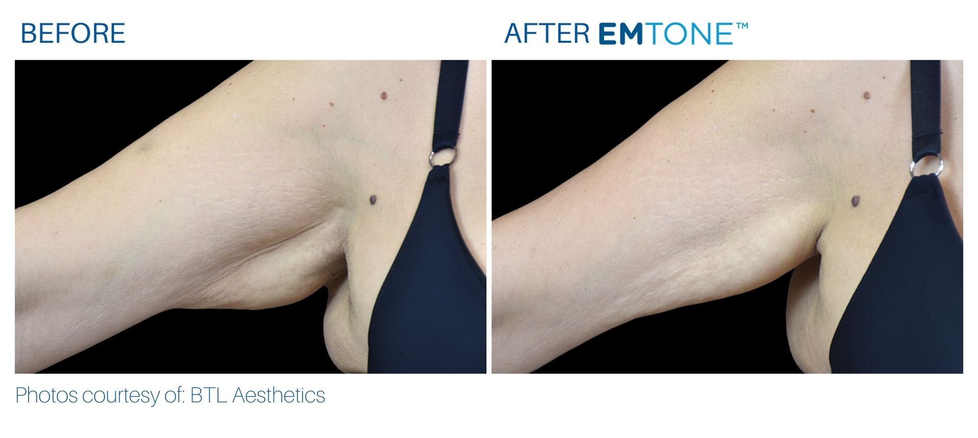 Emtone arms before and after result BodyMorphMD