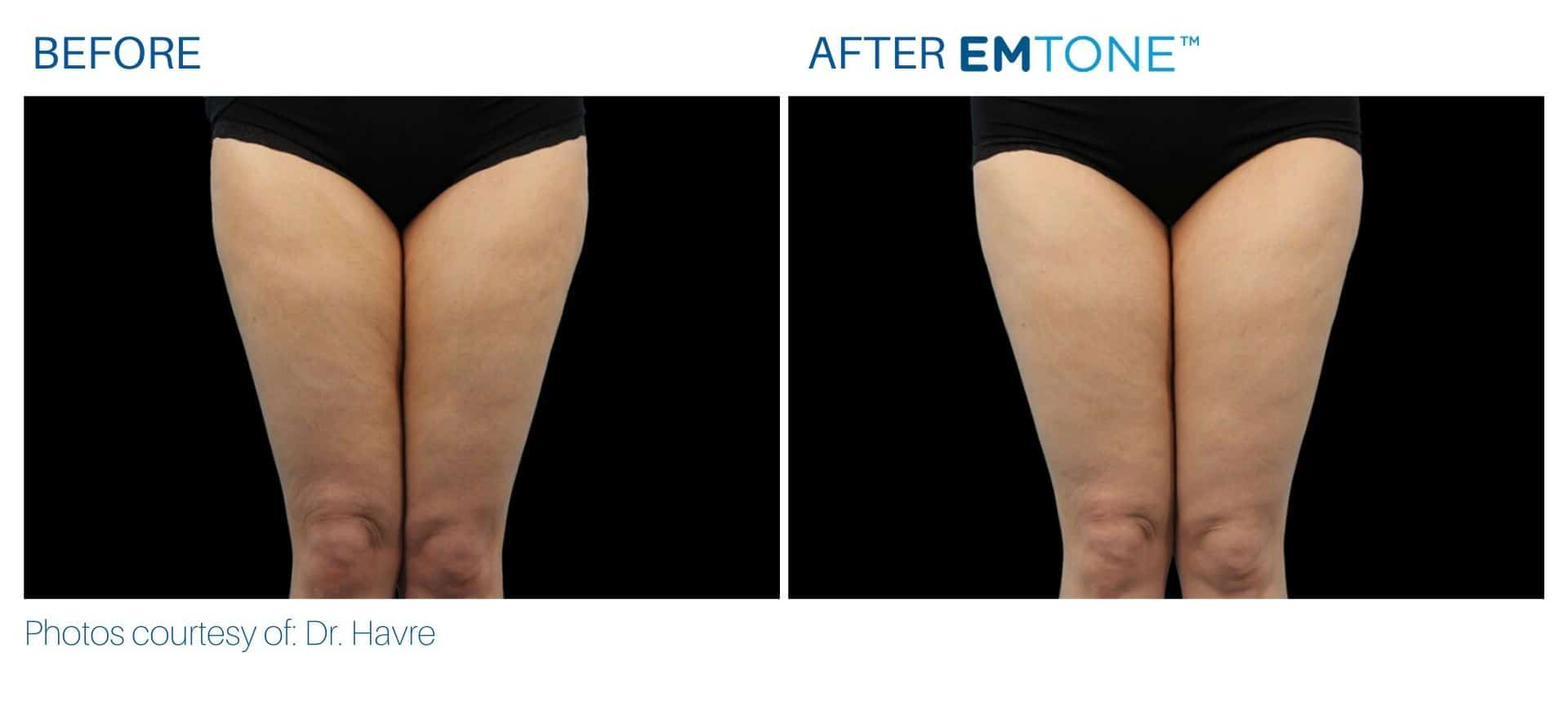 Emtone thighs before and after result Yonkers, NY