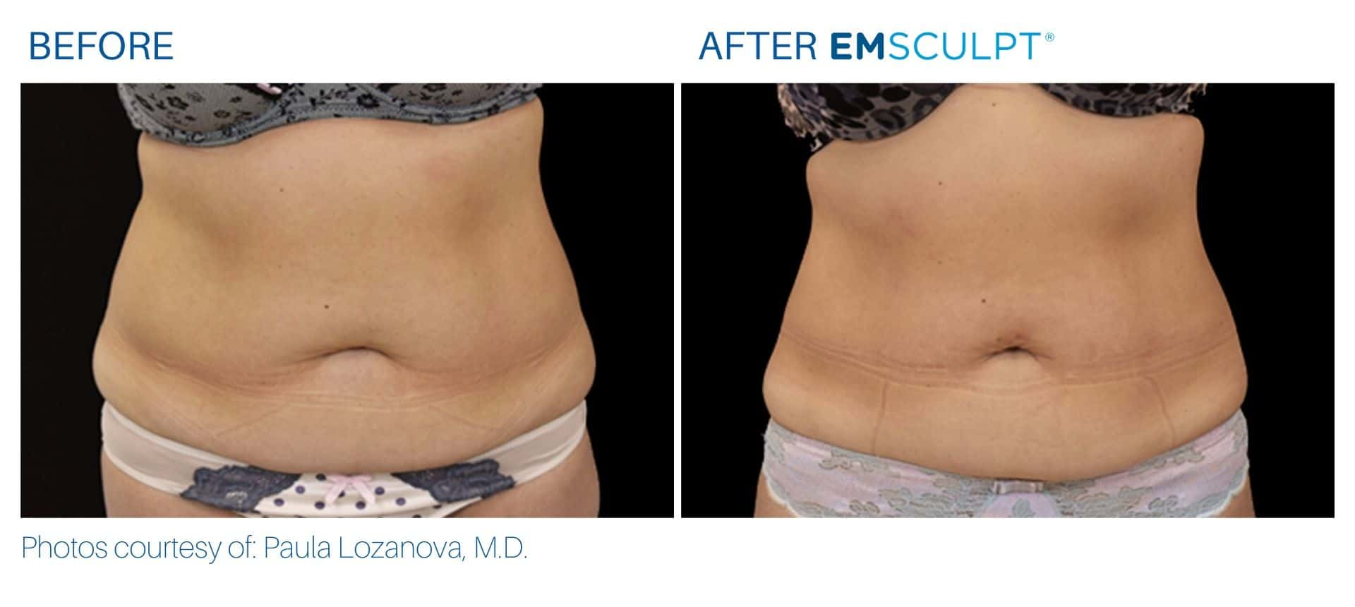 Emsculpt before and after abdomen treatment Body Morph MD